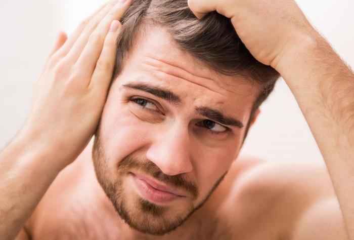 الثعلبة: داء غير معدٍ يُفقد الشعر وهذه هي علاجاته