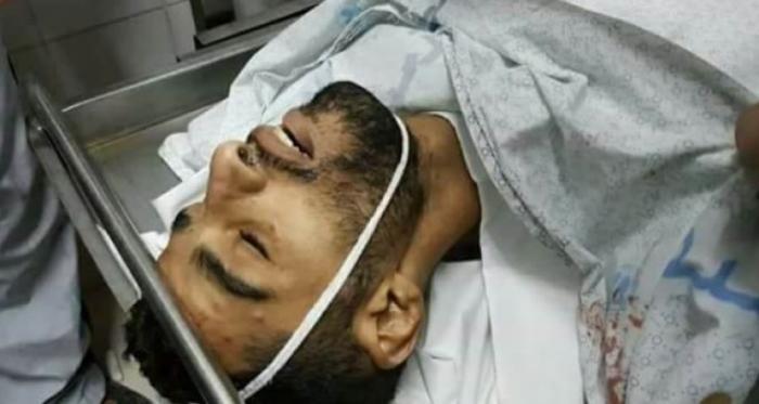 قتيلان فلسطينيان ومئات المصابين في