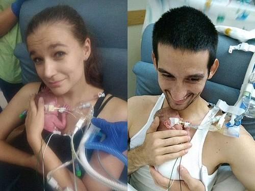 الطفلة المعجزة.. ولدت بوزن أقل من 400 غرام! (شاهد)