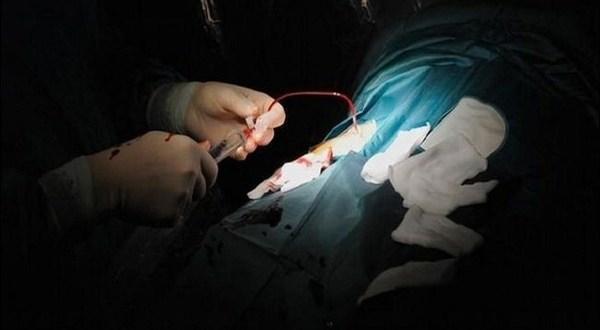 شاب يتهم طبيباً بإفقاده أجزاءً من العضو الذكري