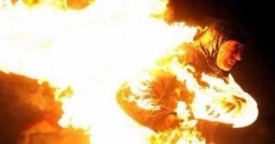 اشعلت النار بجسد جوزها بعد معرفتها بعقد قرانه على عروس جديدة