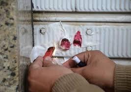 5 مخالفات صحية و18 انذارا لأصحاب محال في دير علا