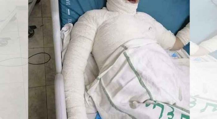 تفاصيل مروعة يرويها والد الفتاة التي توفيت حرقا على يد زوجها في عمان