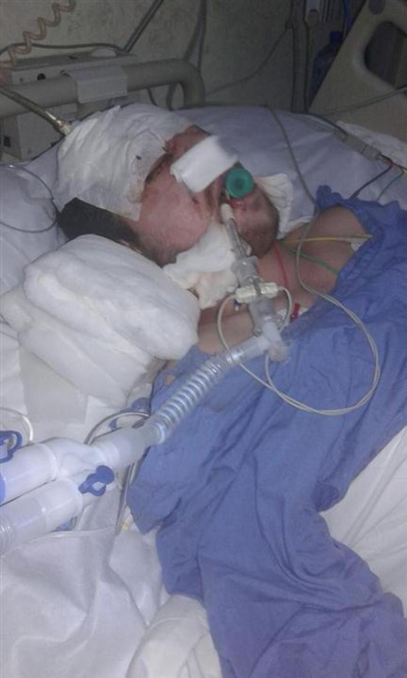 عامل وطن بحالة موت سريري بعد دهسه من قبل سائق 'متهور' في عمان