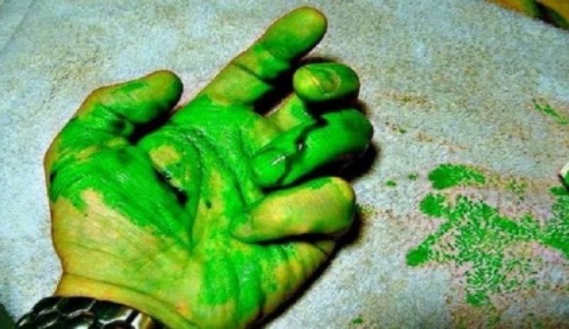 خبر صاعق .. الإنسان قد ينزف دمّاً أخضر اللّون في هذه الحالة!!