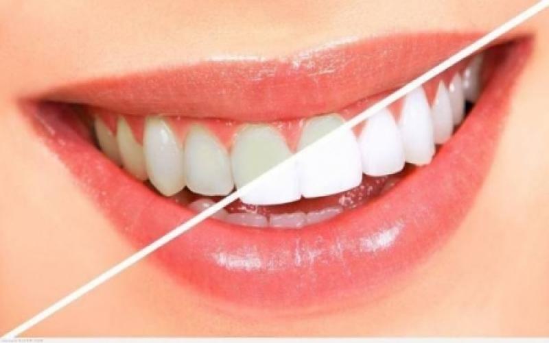 وصفة طبيعية لأسنان أكثر بياضاً فى دقيقتين